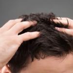 自宅でできる簡単薄毛ケア!まだ間に合う日常のハゲ予防とは?