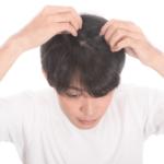 フケが出る!頭皮の乾燥はシャンプーが原因?美容師が教えるケア方法